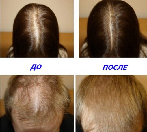 Алерана-спрей от выпадения волос