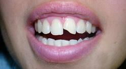 Фрактура коронки зуба