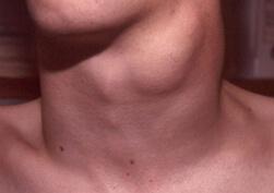 Лечение папиллярного рака щитовидной железы