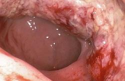 Лечение рака сигмовидной к